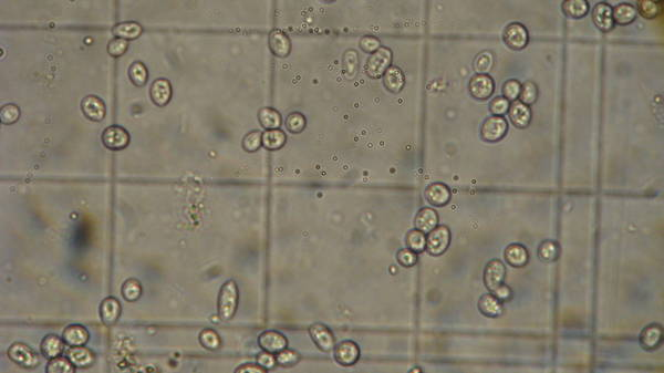 Pics Of Yeast Under My New Microscope Homebrewtalk Com Beer Wine Mead Cider Brewing Discussion Community